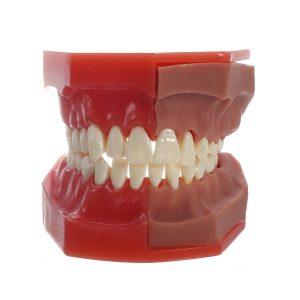 Tandläkarmedel Medicinsk modell av tandmodellmodell för ersättning av tandkrävande tand