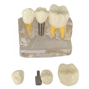 4X Denture Disease Tänder Modell Toy Caries Decay Tand för Dental Medical Demo Communication Undervisning